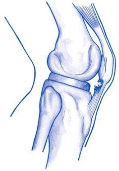 Figuur 1 - Springersknie (apexitis patellae)
