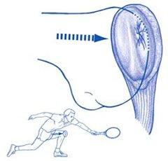 Figuur 1 - Knieblessure - Pijn achter knieschijf