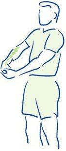 Figuur 2 - Tenniselleboog - Rekken van de polsstrekkers