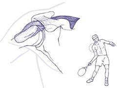 Figuur 1 - Schouderklachten Impingement - Onderhands voldoende ruimte onder schouderdak
