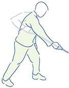 Figuur 4 - Slap Laesie schouderblessure - Zagen