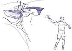 Figuur 2 - Schouderklachten Impingement - Bovenhands kan inklemming optreden