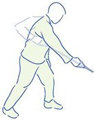 Figuur 5 - Schouderklachten Impingement - Zagen