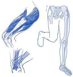 Figuur 1 - Knieblessure - Pijn buitenzijde knie - iliotibiaal frictiesyndroom